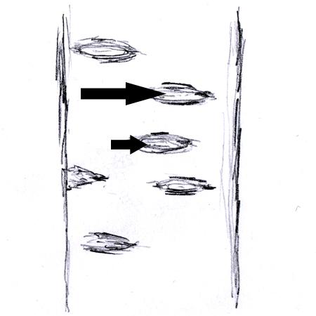Lenticelle thumbnail